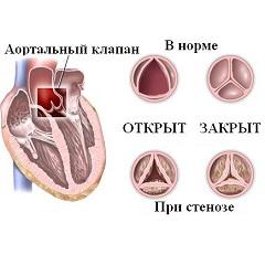 Фото - Задишка і стенокардія - симптоми аортального стенозу