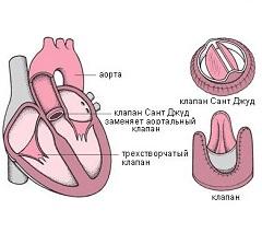 Фото - Заміна клапана - хірургічний спосіб лікування аортального стенозу