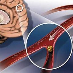 Фото - Гіперліпідемія - одна з причин розвитку атеросклерозу мозку