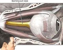 Фото - Атрофія зорового нерва - поступовий розпад його тканин