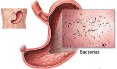 Фото - Гастроентерит - запалення шлунка і тонкого кишечника