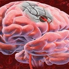 Фото - Гіпоксія мозку - нестача кисню