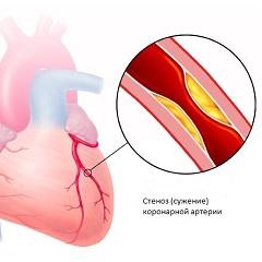Фото - Ішемічна хвороба серця - ураження міокарда