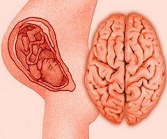 Фото - Перинатальна енцефалопатія розвивається ще в утробі