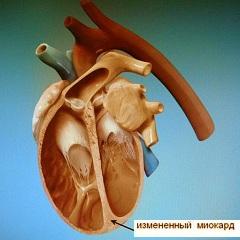 Фото - Класифікація кардіоміопатії