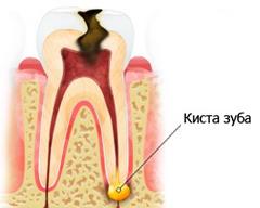 Кіста на корені зуба