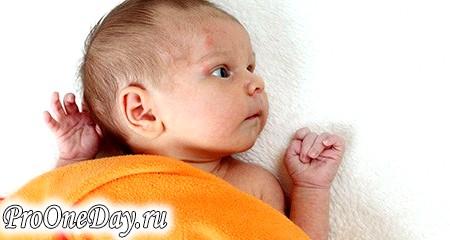 Фото - Методи лікування контагіозного молюска у дітей