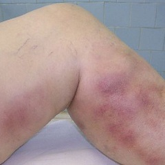 Фото - Тромбоз - одна з причин порушення крообращенія