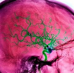 Фото - Атеросклероз - одна з найбільш частих причин порушення мозкового кровообігу