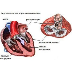Фото - Атеросклероз - одна з причин недостатності аортального клапана