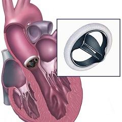 Фото - Протезування - один з методів лікування недостатності аортального клапана