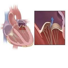 Фото - Порушення серцевих ритмів - основний симптом недостатності мітрального клапана