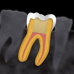 Фото - Обтурація кореневих каналів зуба