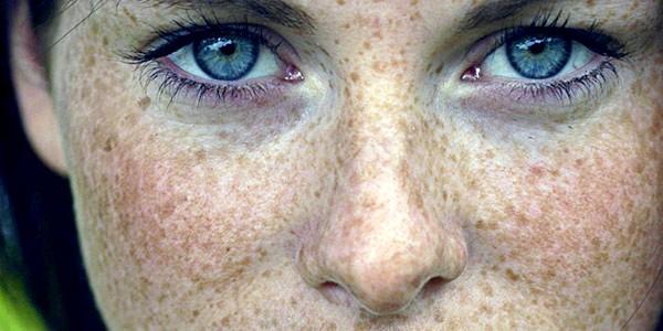 Причини появи пігментних плям на обличчі