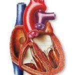 Фото - Набуті вади серця - дефекти серцевих перегородок