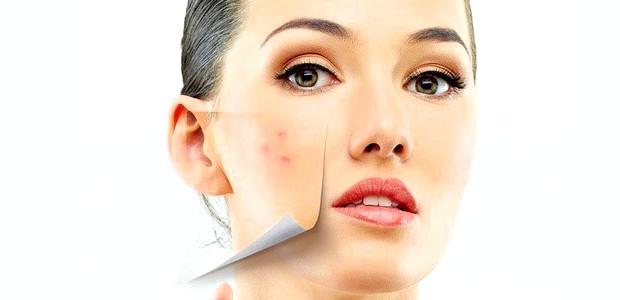Прищі на обличчі причини і профілактика