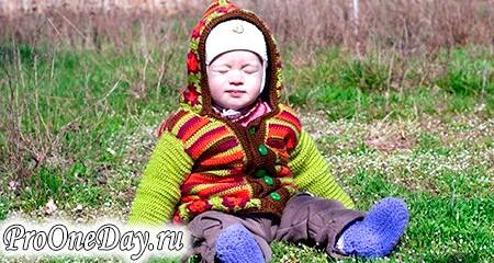 Фото - Причини і ознаки рахіту у дітей