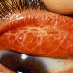 Фото - Трохим - це інфекційне захворювання очей