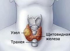 Фото - Вузловий зоб - узагальнююче визначення об'ємних новоутворень в щитовидній залозі